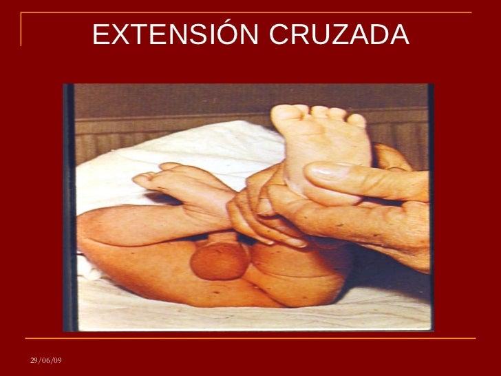 REFLEJO DE EXTENSION CRUZADA EPUB DOWNLOAD