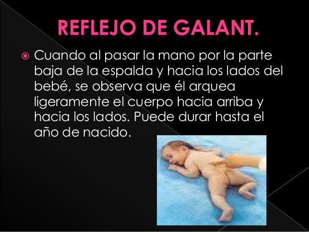 Reflejos en los bebes