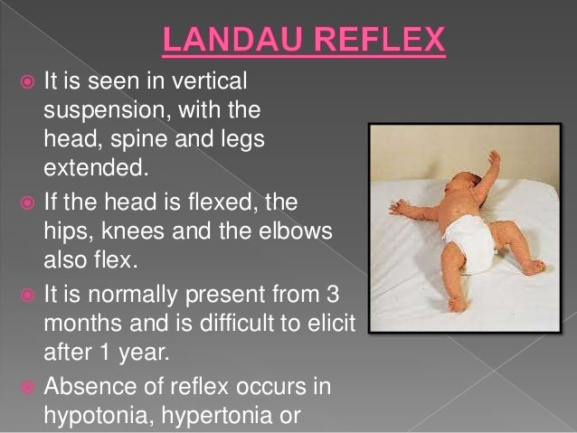 infant reflex