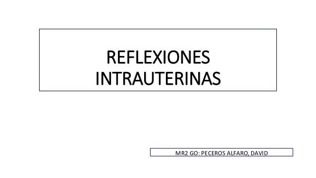 REFLEXIONES  INTRAUTERINAS  MR2 GO: PECEROS ALFARO, DAVID