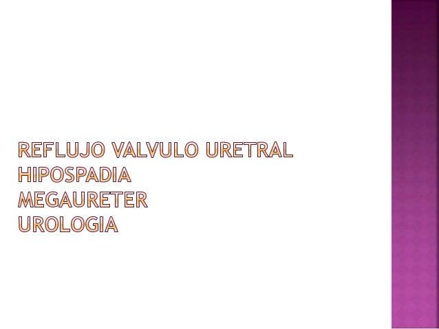  En circunstancias normales , la unión ureterovesical permite que la orina entre en la vejiga pero evita que la orina se ...