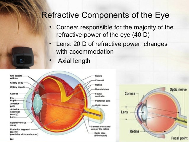 Overview of refractive error eye disorders msd manual.