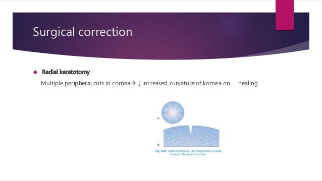 Refractive Errors Of Eye Ophthalmology Astigmatism