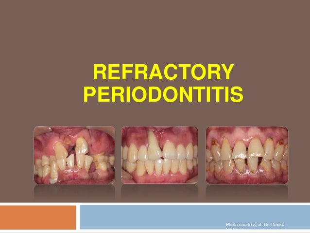 REFRACTORY PERIODONTITIS Photo courtesy of: Dr. Darika Saitawee