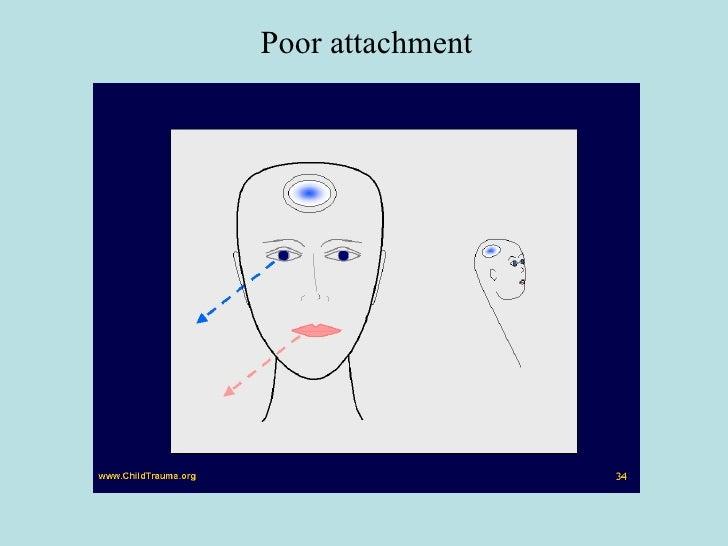 Poor attachment