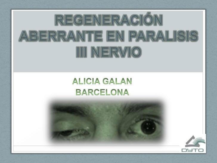 REGENERACIÓN ABERRANTE EN PARALISIS III NERVIO<br />ALICIA GALAN<br />BARCELONA<br />