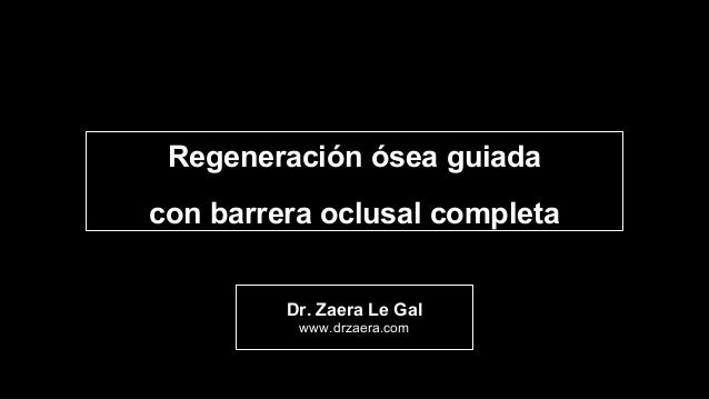 Dr. Zaera Le Gal www.drzaera.com Regeneración ósea guiada con barrera oclusal completa