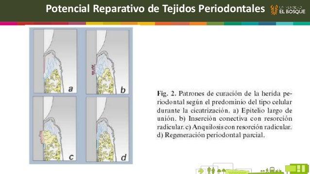 Potencial Reparativo de Tejidos Periodontales