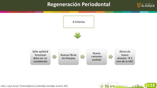 Regeneración Periodontal 4 Criterios Selle epitelial funcional debe ser re- establecido Nuevas fibras de Sharpey Nuevo cem...