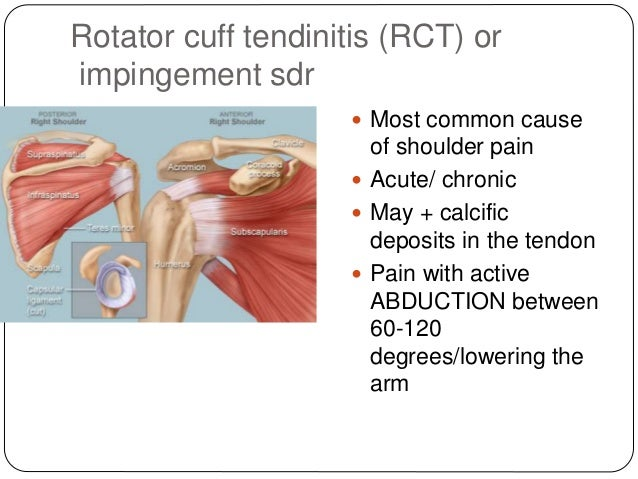 where to inject steroids in deltoid