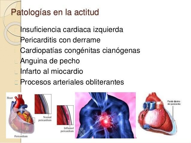 Patologías en la actitud Insuficiencia cardiaca izquierda Pericarditis con derrame Cardiopatías congénitas cianógenas Angu...