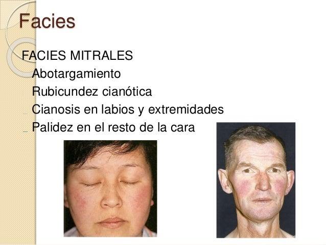 Facies FACIES MITRALES Abotargamiento Rubicundez cianótica Cianosis en labios y extremidades Palidez en el resto de la cara