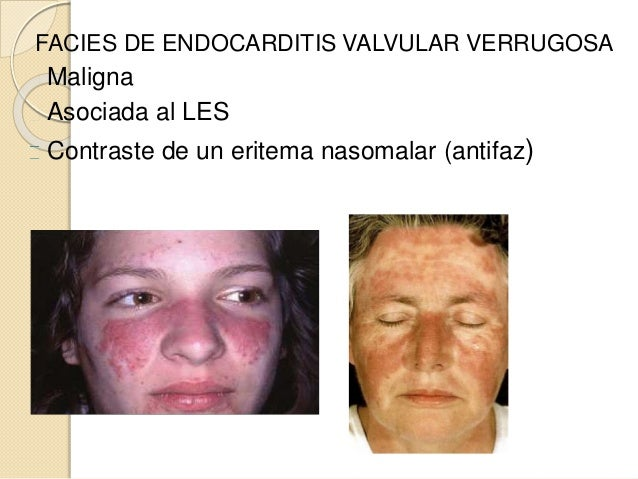 FACIES DE ENDOCARDITIS VALVULAR VERRUGOSA Maligna Asociada al LES Contraste de un eritema nasomalar (antifaz)
