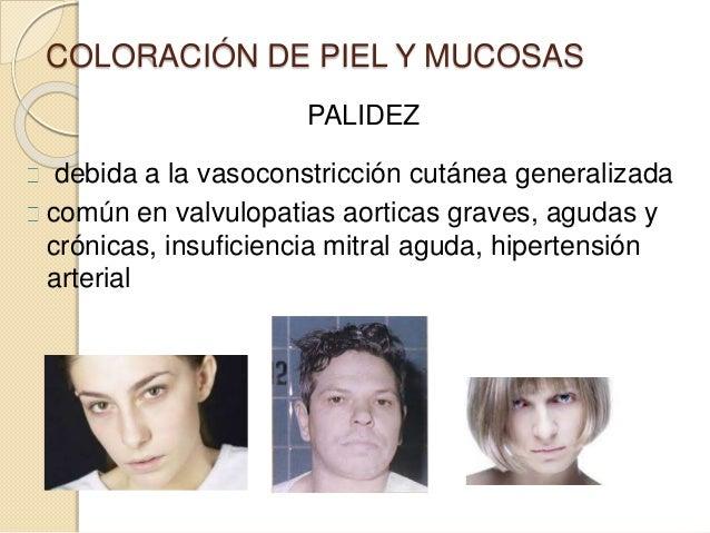 COLORACIÓN DE PIEL Y MUCOSAS PALIDEZ debida a la vasoconstricción cutánea generalizada común en valvulopatias aorticas gra...
