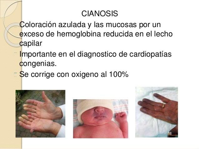 CIANOSIS Coloración azulada y las mucosas por un exceso de hemoglobina reducida en el lecho capilar Importante en el diagn...