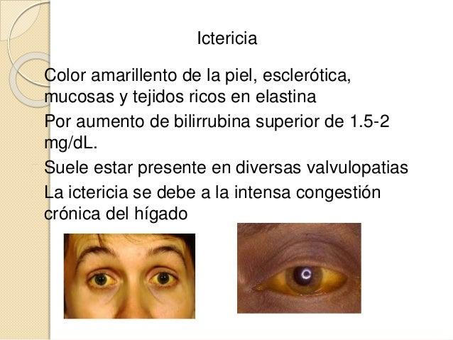 Ictericia Color amarillento de la piel, esclerótica, mucosas y tejidos ricos en elastina Por aumento de bilirrubina superi...