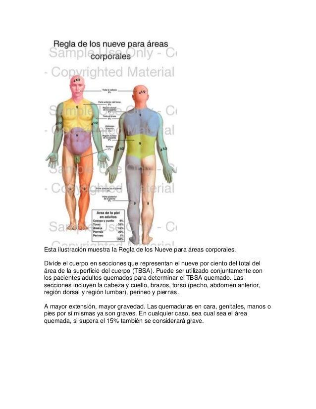 Esta ilustración muestra la Regla de los Nueve para áreas corporales.Divide el cuerpo en secciones que representan el nuev...