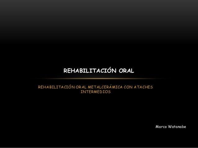 REHABILITACIÓN ORALREHABILITACIÓN ORAL METALCERÁMICA CON ATACHES                 INTERMEDIOS                              ...