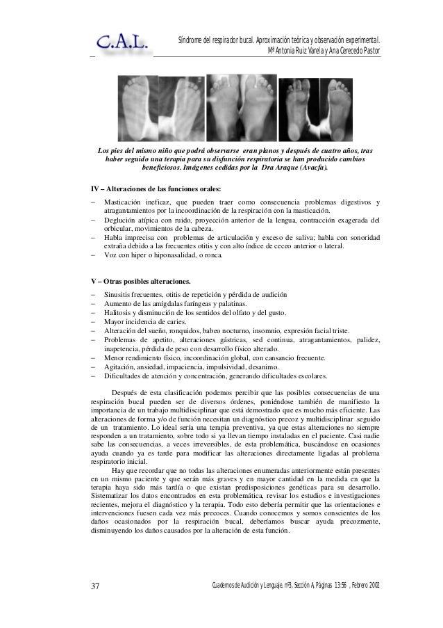 Rehabilitacion para respirador oral