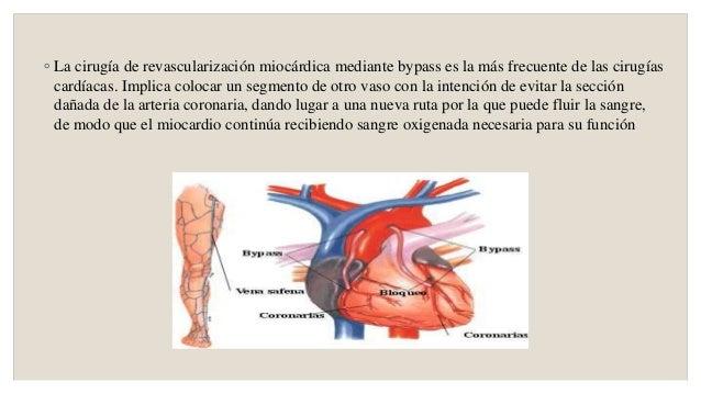 Flebektomiya y la trombosis de las venas profundas