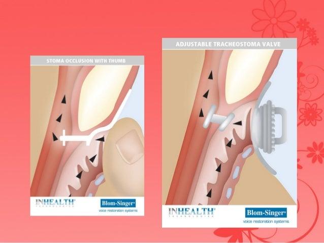 Rehabilitation after laryngectomy
