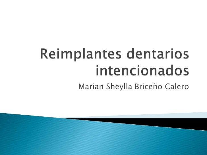 Reimplantes dentarios intencionados<br />Marian Sheylla Briceño Calero<br />