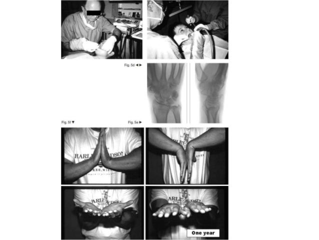 Distal radius fracture management in elderly patients a literature review