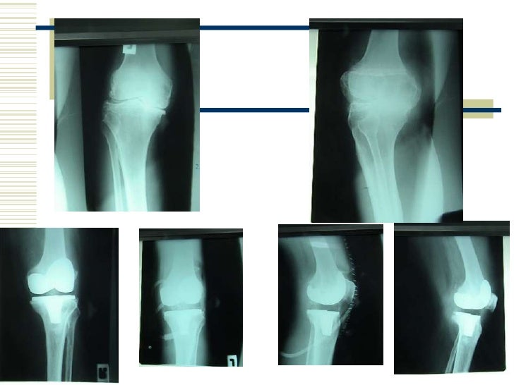 Possible application of prosthesis and cages</li></ul>According to Kambin, <br />3 Patient Type fell into PEDD<br />Disc p...