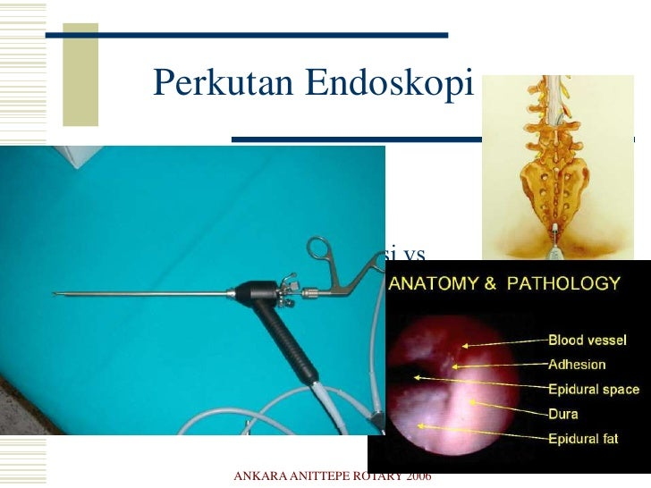 ANKARA ANITTEPE ROTARY 2006<br />Minimal İnvaziv Omurga<br />Mikroendoskopi-Mikroskopik Cerrahi<br />Perkutan teknikler<br...