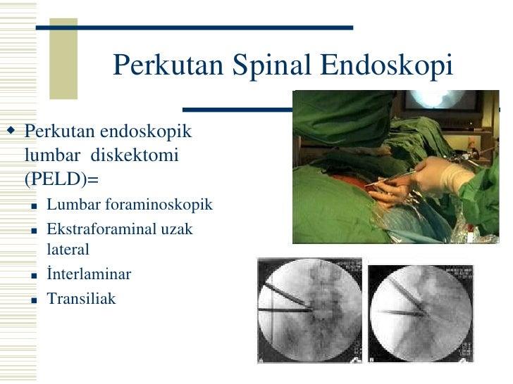 ANKARA ANITTEPE ROTARY 2006<br />Spinal Cerrahi Evrimi <br />Açık Cerrahi<br />Total Disk<br />Replasmanı<br />Füzyon<br /...