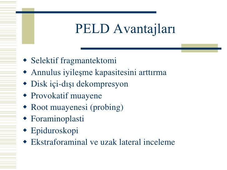 ANKARA ANITTEPE ROTARY 2006<br />Perkutan Endoskopik Diskektomi Evrimi<br /><ul><li>Santral Dekompresyon