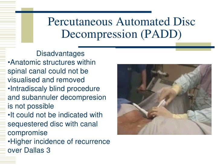 Percutaneous Automated Disc Decompression (PADD)<br />Disadvantages<br /><ul><li>Anatomic structures within spinal canal c...