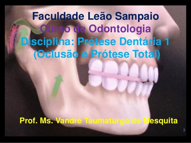 Faculdade Leão Sampaio Curso de Odontologia Disciplina: Prótese Dentária 1 (Oclusão e Prótese Total) Prof. Ms. Vandré Taum...