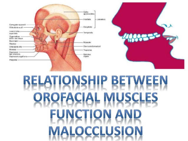 The relationship between facial fractures and death from neurologic injury