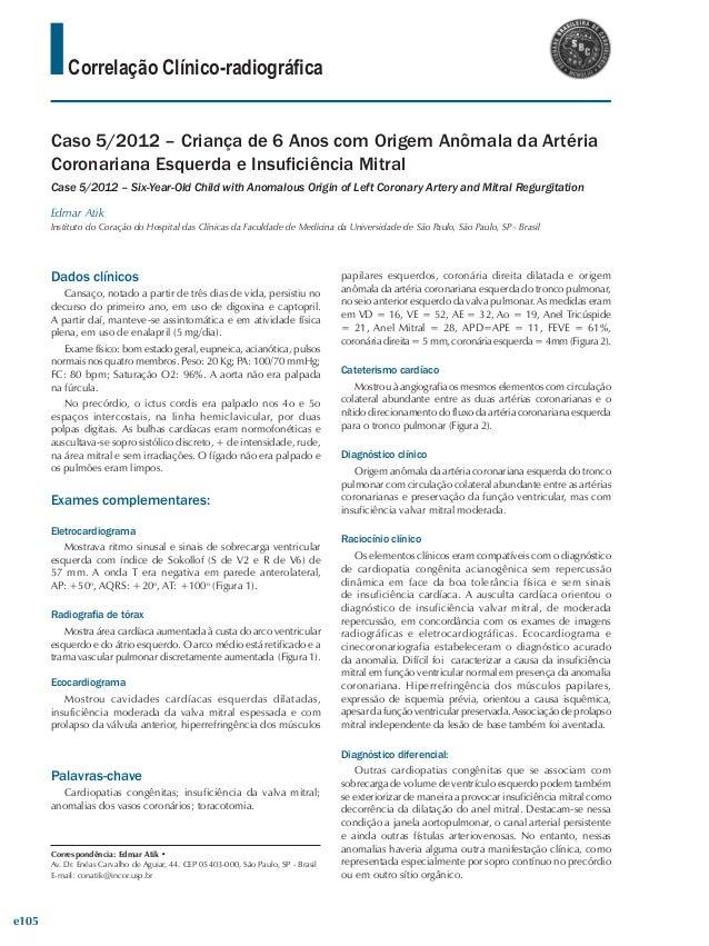Correlação Clínico-radiográfica Caso 5/2012 – Criança de 6 Anos com Origem Anômala da Artéria Coronariana Esquerda e Insuf...