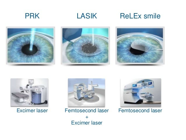 Re l ex smile, the future of refractive surgery ...