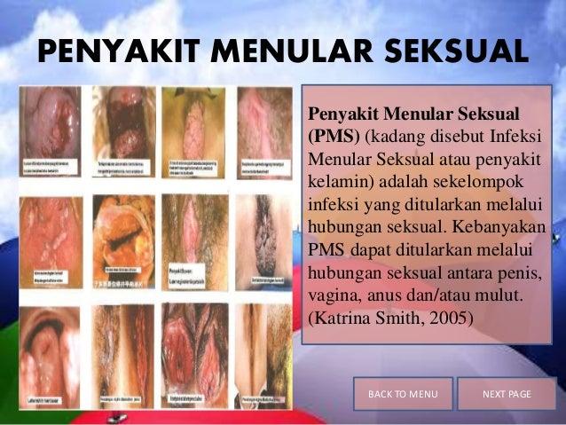 PENYAKIT MENULAR SEKSUAL Penyakit Menular Seksual (PMS) (kadang disebut Infeksi Menular Seksual atau penyakit kelamin) ada...