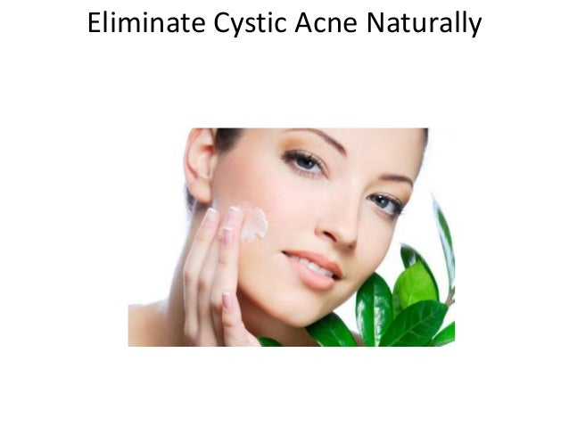 Eliminate Cystic Acne Naturally