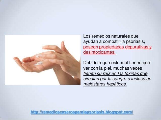 Remedios caseros para la psoriasis en el cuerpo Slide 3