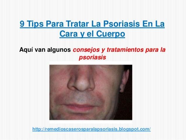 9 Tips Para Tratar La Psoriasis En LaCara y el CuerpoAquí van algunos consejos y tratamientos para lapsoriasishttp://remed...