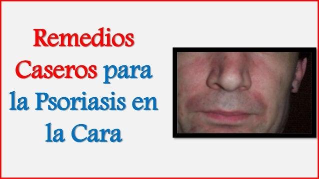 Remedios Caseros para la Psoriasis en la Cara