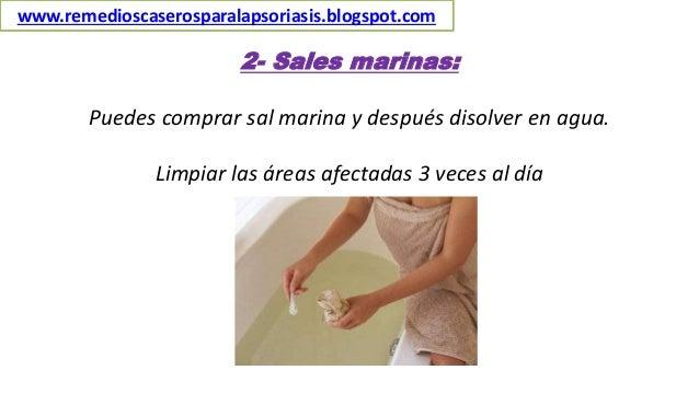 2- Sales marinas: Puedes comprar sal marina y después disolver en agua. Limpiar las áreas afectadas 3 veces al día www.rem...