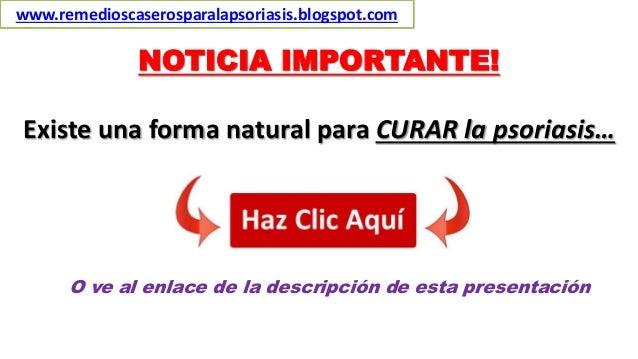 NOTICIA IMPORTANTE! Existe una forma natural para CURAR la psoriasis… O ve al enlace de la descripción de esta presentació...