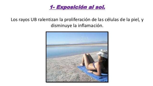 Remedios naturales para la psoriasis en la piel! Slide 2