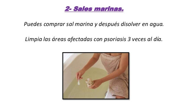 Remedios naturales para la psoriasis en la piel! Slide 3