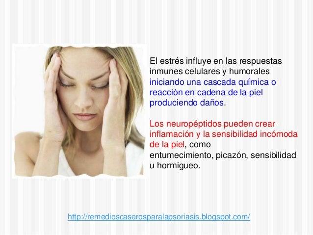 Remedios naturales para la psoriasis nerviosa Slide 2