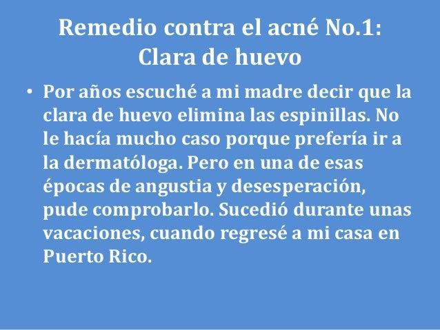 Los medios del acné a la piel grasa