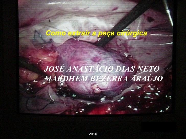 Como extrair a peça cirúrgica JOSÉ ANASTÁCIO DIAS NETO MARDHEM BEZERRA ARAÚJO 2010