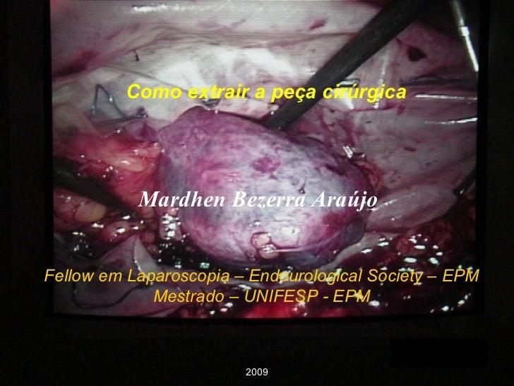 Como extrair a peça cirúrgica Fellow em Laparoscopia – Endourological Society – EPM Mestrado – UNIFESP - EPM Mardhen Bezer...