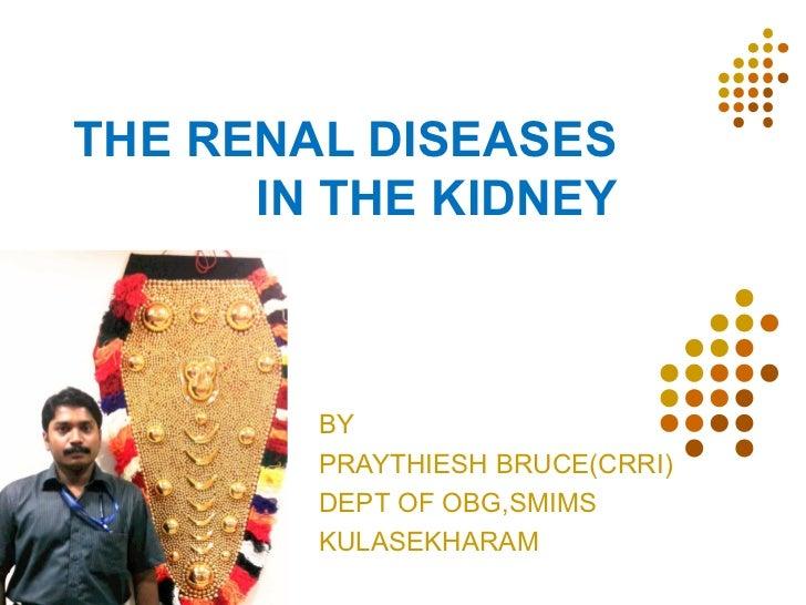 THE RENAL DISEASES      IN THE KIDNEY        BY        PRAYTHIESH BRUCE(CRRI)        DEPT OF OBG,SMIMS        KULASEKHARAM